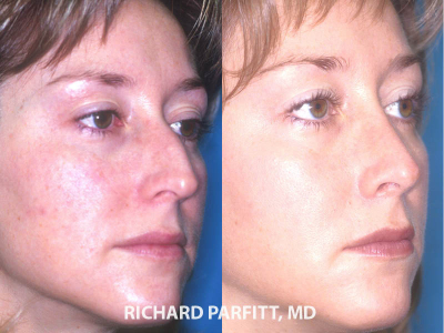 best nose job plastic surgeon Appleton WI before and after