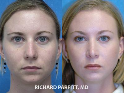 plastic surgery rhinoplasty Madison WI