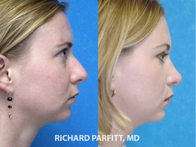 rhinoplasty expert Appleton WI before and after female side view