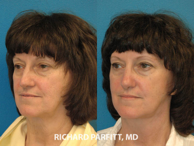 50 year old female rhinoplasty before and after