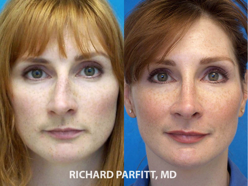 Appleton WI plastic surgery rhinoplasty before and after