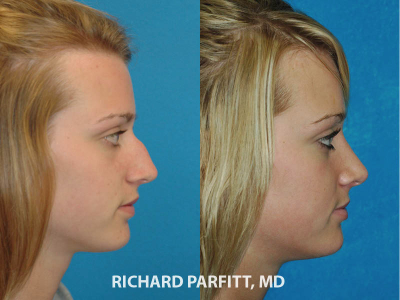 nose job before and after 20 year old female Wisconsin plastic surgery