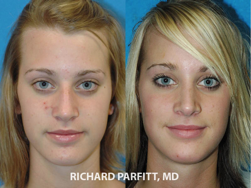 Wisconsin plastic surgeon rhinoplasty nose surgery before and after