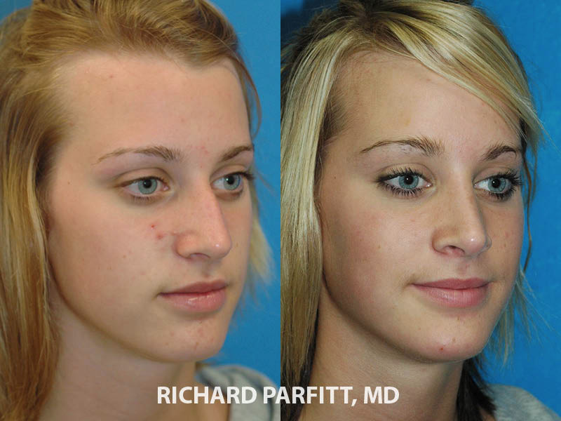 nose job before and after 20 year old female plastic surgery oblique view