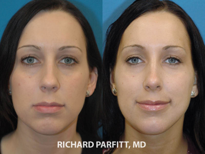rhinoplasty plastic surgery before and after Madison plastic surgeon