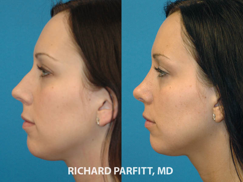 plastic surgery nose job before and after side view