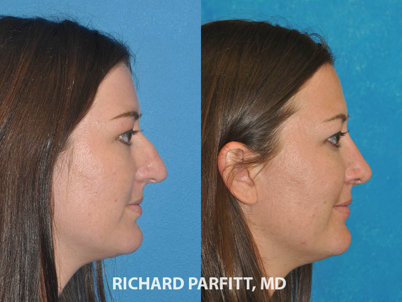 rhinoplasty expert Madison WI before and after female side view