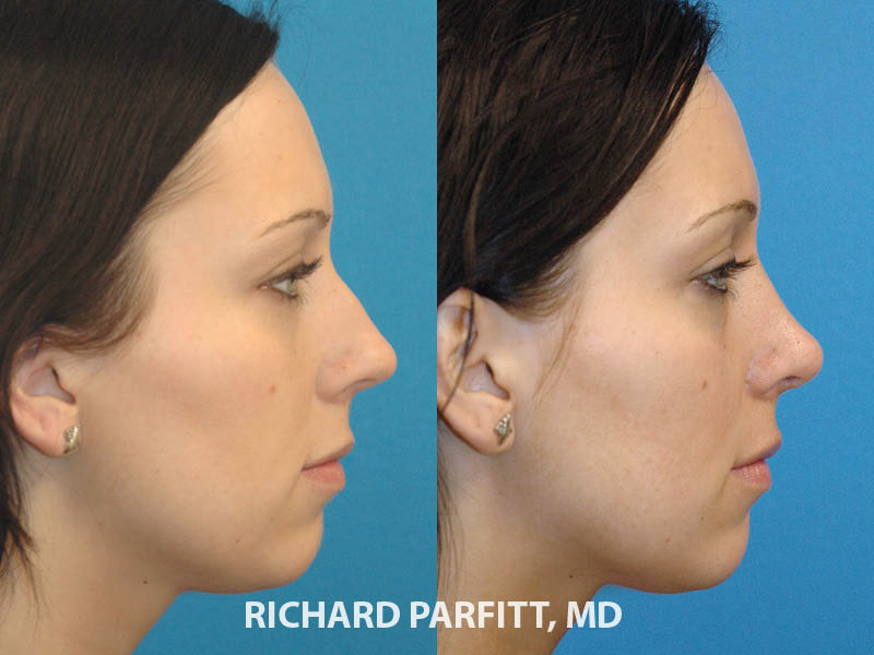 Wisconsin facial plastic surgeon rhinoplasty nose surgery before and after