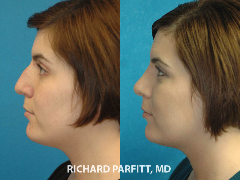 Appleton WI facial plastic surgeon rhinoplasty nose surgery before and after