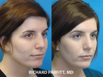 plastic surgeon rhinoplasty WI before and after