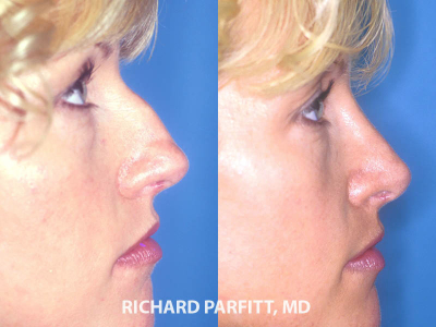 rhinoplasty female patient before and after Appleton WI