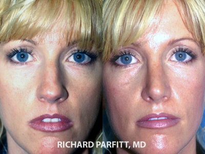 nose plastic surgery before and after Green Bay