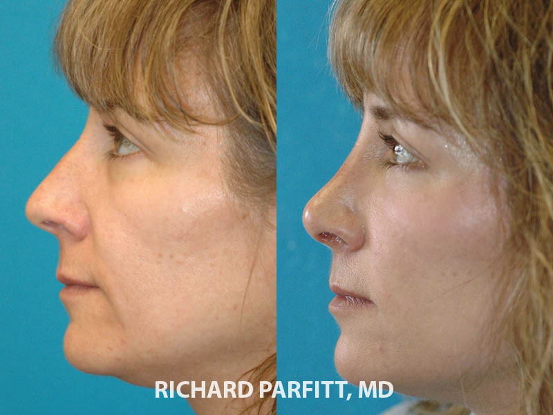 best nose job plastic surgeon Madison WI before and after