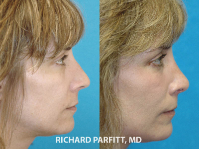 nose surgery Midwest facial plastic surgeon before and after