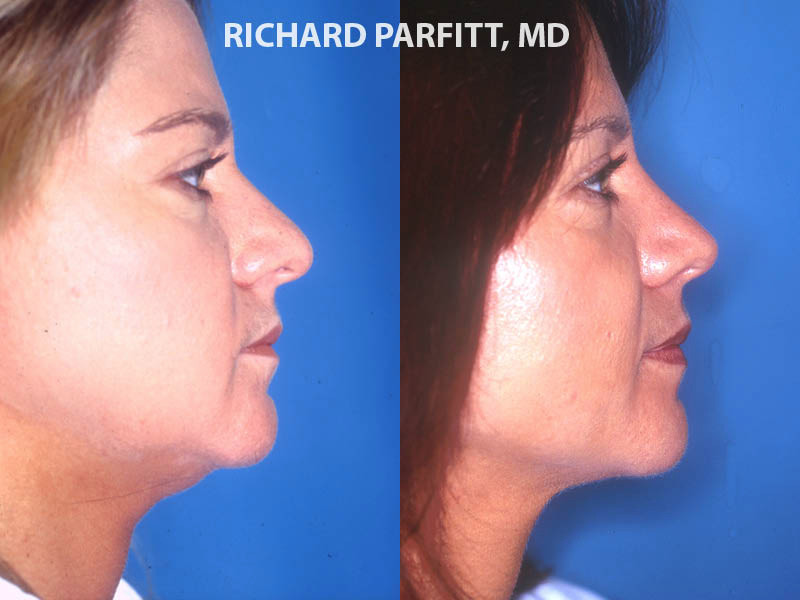 best facial plastic surgeon rhinoplasty nose surgery before and after