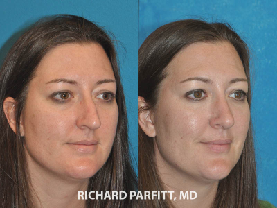 female patient before and after rhinoplasty procedure Madison WI