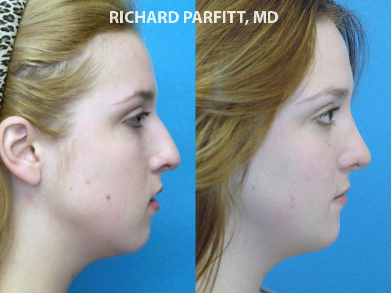 Wisconsin Facial Plastic Surgeon rhinoplasty nose procedure before and after