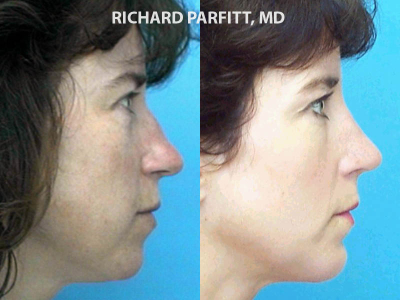 Wisconsin Facial Plastic Surgeon nose surgery before and after