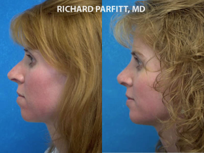 Facial Plastic Surgeon rhinoplasty before and after