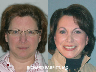 facial plastic surgery rhinoplasty and facelift before and after