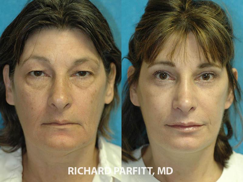 plastic surgery nose job, facelift, eyelid rejuvenation Madison WI