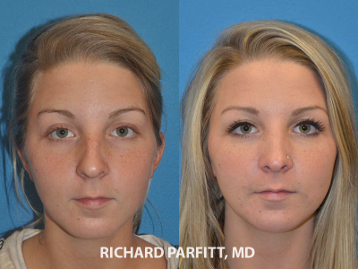 rhinoplasty surgery before and after 20 year old female Appleton WI cosmetic surgery