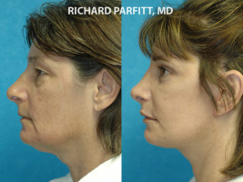 Appleton WI plastic surgery submental neck liposuction