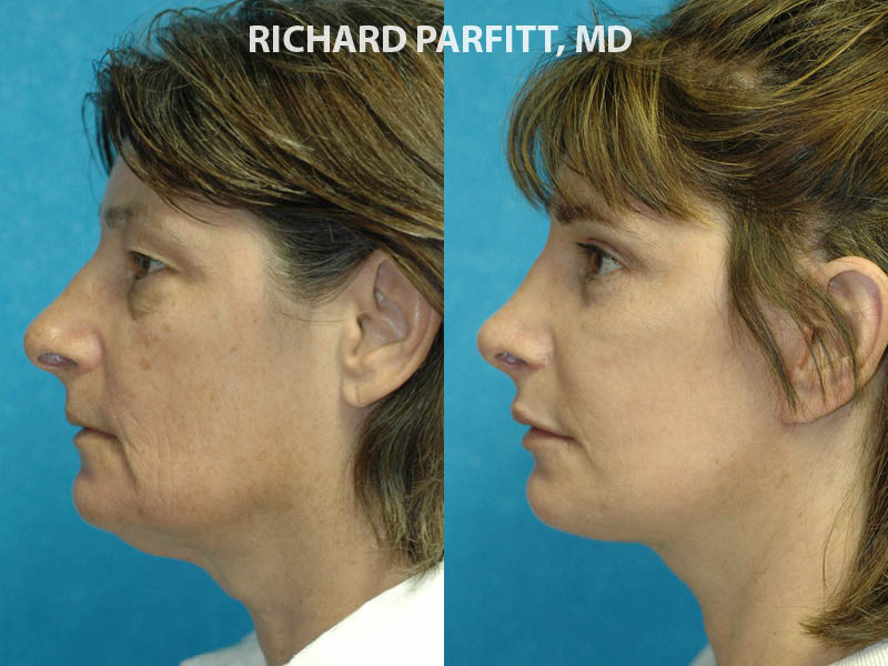 Appleton WI plastic surgery submental neck liposuction