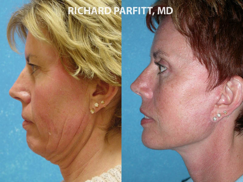 facial plastic surgery neck liposuction female WI before and after
