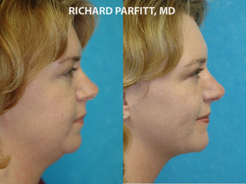 neck liposuction Wisconsin female before and after case