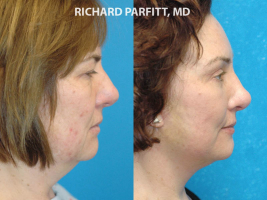 WI plastic surgery neck liposuction before and after female