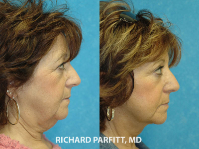 neck liposuction female before and after plastic surgery WI