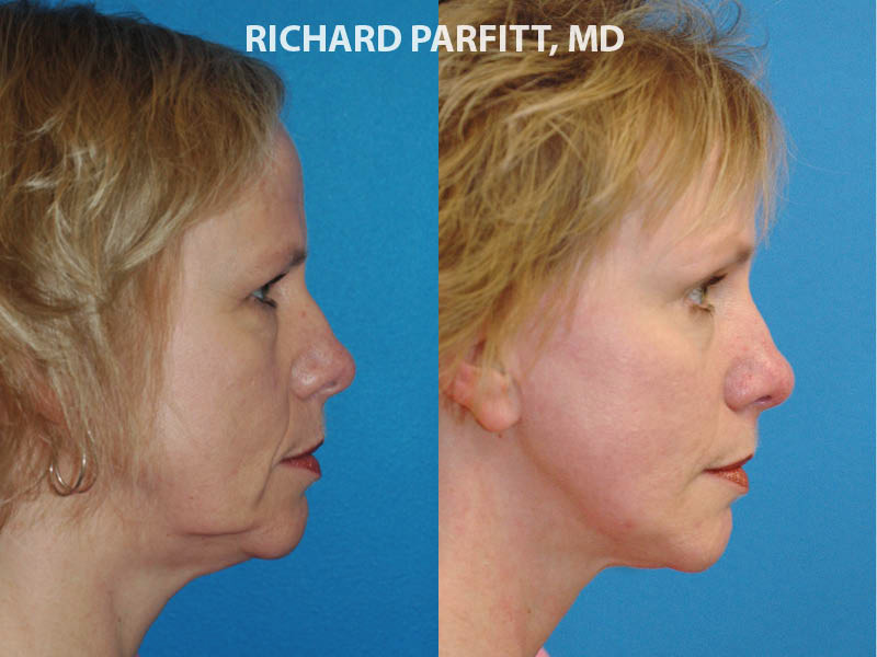 Appleton WI cosmetic surgery neck liposuction before and after