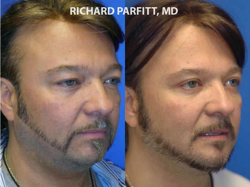 Appleton WI neck liposuction male before and after