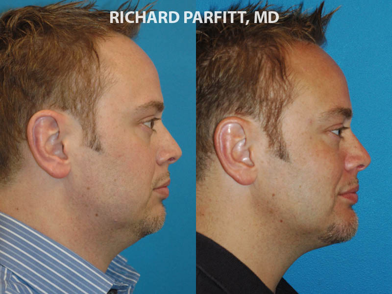 neck liposuction chin implant male plastic surgery before and after
