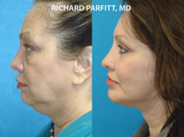 neck liposuction before and after photos Madison Wisconsin