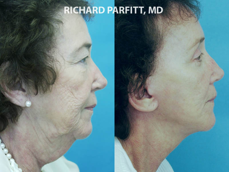 Middleton facial plastic surgery neck liposuction before and after