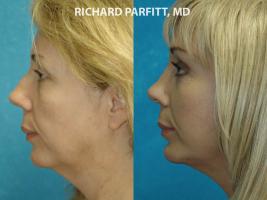 Middleton WI plastic surgery submental liposuction female patient