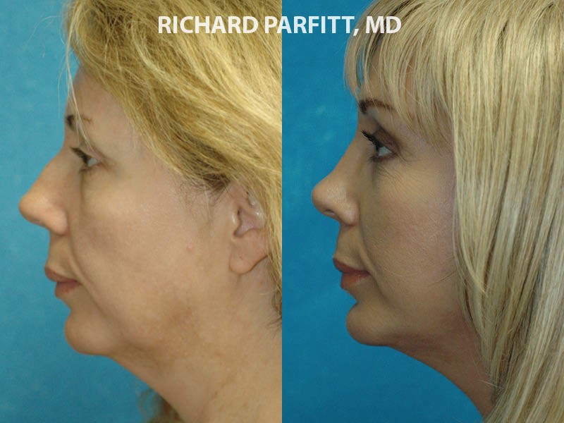 Middleton WI plastic surgery submental liposuction female patient