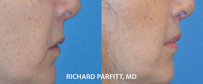 before and after surgery lip lift Parfitt
