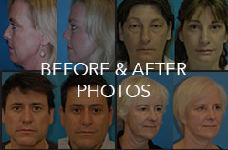 before-and-after-photos