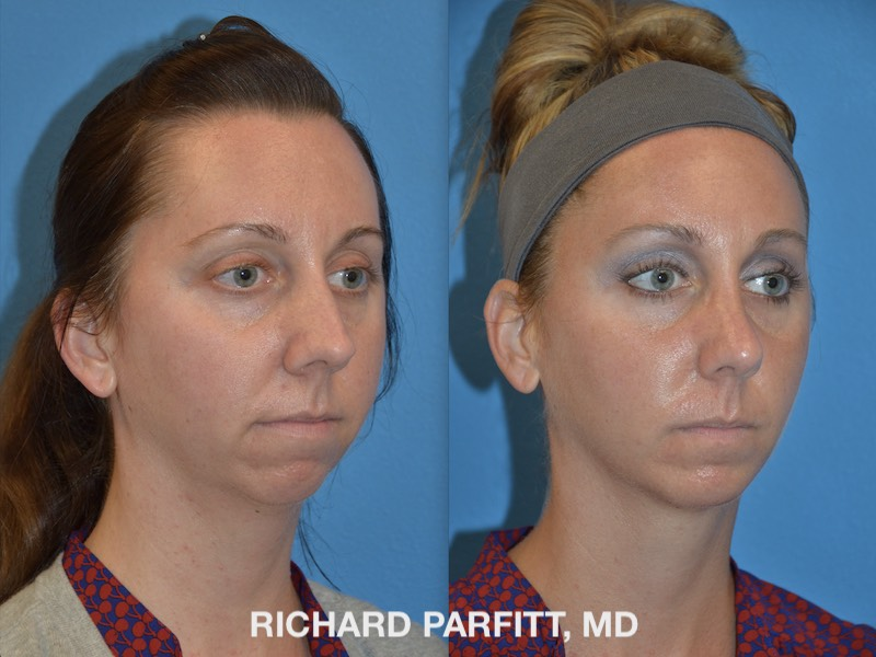 Chin Implant Photos - Parfitt Facial Plastic Surgery Center
