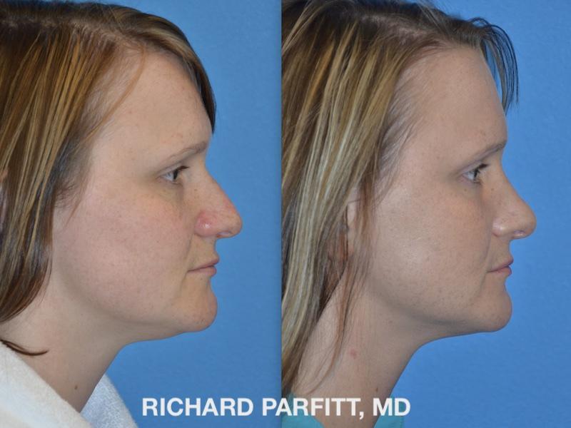 Neck Liposuction Photos - Parfitt Facial Plastic Surgery Center