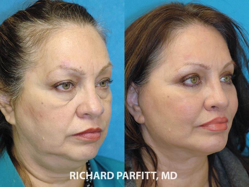 Facial plastic surgeon surgery