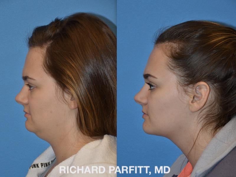 Neck Liposuction Photos Parfitt Facial Plastic Surgery Center